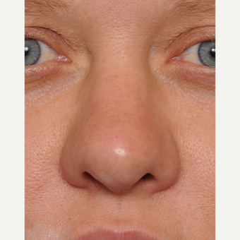 35-44 year old woman treated with Revision Rhinoplasty before 3438431