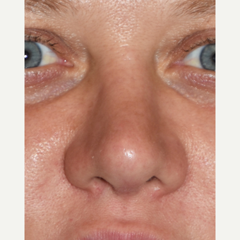 35-44 year old woman treated with Revision Rhinoplasty after 3438431