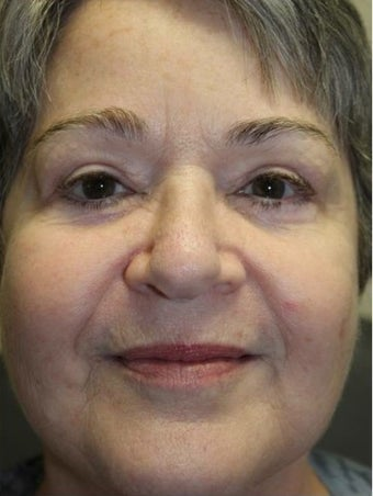 55-64 year old woman treated with Eye Bags Treatment after 3227769