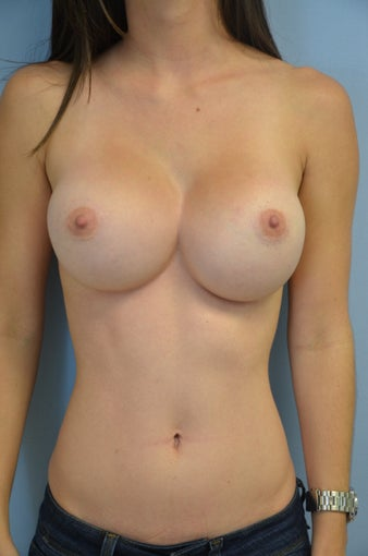 Breast implant revision before 887394
