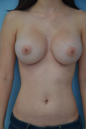 Breast implant revision after 887394