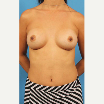 35-44 year old woman treated with Breast Implants after 3786981