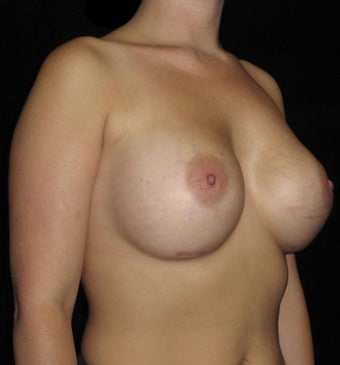 25-34 year old woman treated with Breast Augmentation 3802772