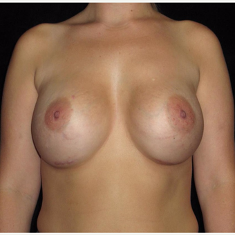 25-34 year old woman treated with Breast Augmentation after 3802772