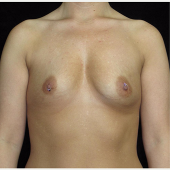 25-34 year old woman treated with Breast Augmentation before 3802772