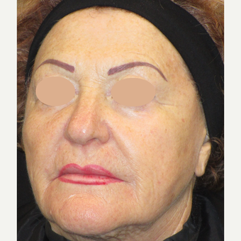 65-74 year old woman treated with Laser Surgery before 3090112