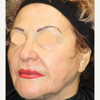 65-74 year old woman treated with Laser Surgery after 3090112
