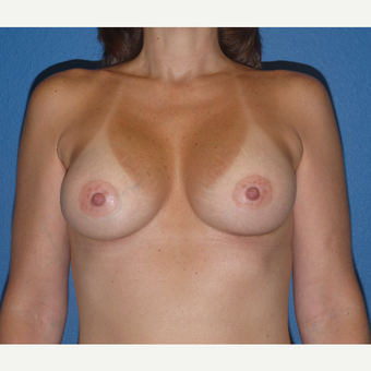35-44 year old woman treated with gummy bear Breast Augmentation after 2995873