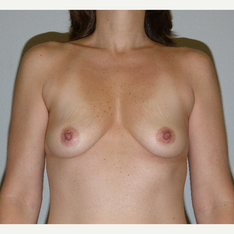 35-44 year old woman treated with gummy bear Breast Augmentation before 2995873