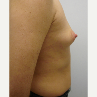 25-34 year old woman treated with Breast Augmentation before 3584017