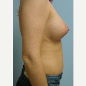 25-34 year old woman treated with Breast Augmentation after 3584017