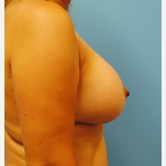 B to D cup.  45 year old with silicone breast augmentation after 3422824