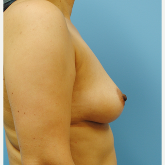 B to D cup.  45 year old with silicone breast augmentation before 3422824