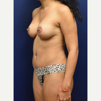 35-44 year old woman treated with Breast Lift with Implants after 3348716