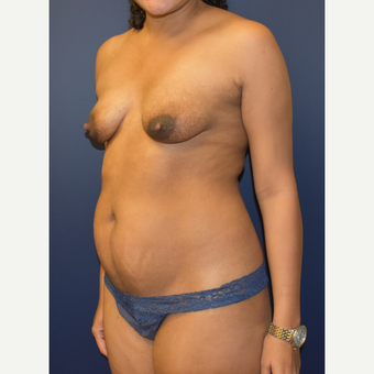 35-44 year old woman treated with Breast Lift with Implants before 3348716