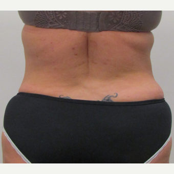 Liposuction of the Love Handles for This 42 Year Old Woman after 3387235
