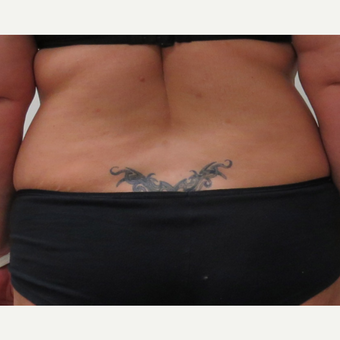 Liposuction of the Love Handles for This 42 Year Old Woman before 3387235