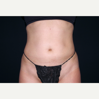 35-44 year old woman treated with Smart Lipo after 3645419