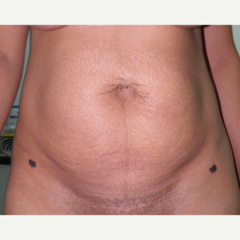 35-44 year old woman treated with Tummy Tuck before 3122883