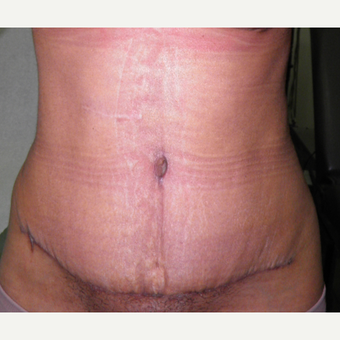 35-44 year old woman treated with Tummy Tuck after 3122883