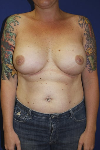 37 year old patient with breast cancer. after 1249552