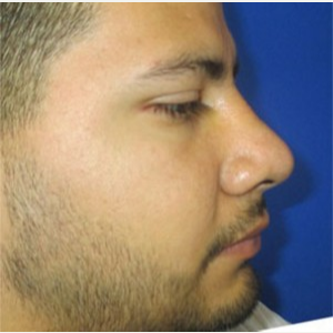 Rhinoplasty after 2993734