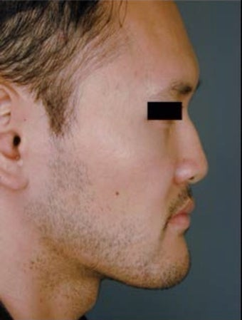 Asian Male Rhinoplasty