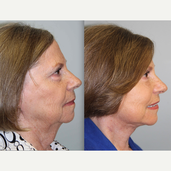 69 Year-Old Female Underwent a Neck Lift before 3315720