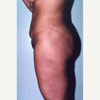Liposuction after 1892045