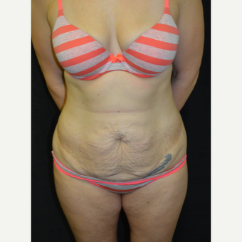 35-44 year old woman treated with Tummy Tuck before 3181676
