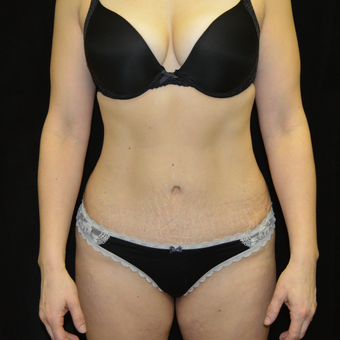35-44 year old woman treated with Tummy Tuck after 3181676