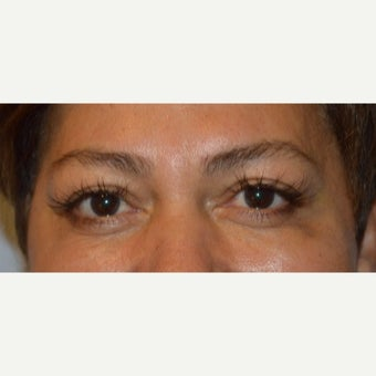 45-54 year old woman treated with Restylane