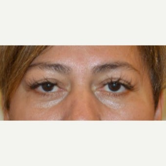 45-54 year old woman treated with Restylane before 2076775