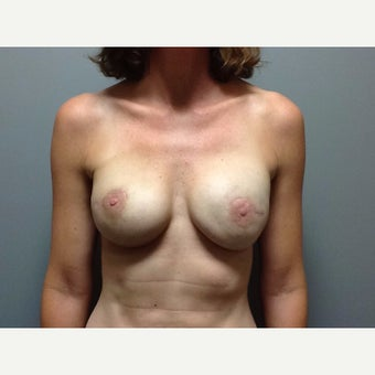 44 year old woman treated with Breast Reconstruction