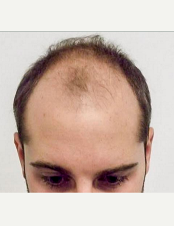 18-24 year old man treated with Hair Transplant before 3762242