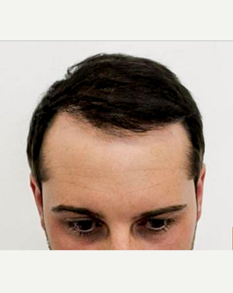 18-24 year old man treated with Hair Transplant after 3762242