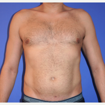 35-44 year old man treated with Liposculpture before 3240626