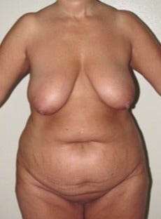 Tummy tuck, breast lift and lipo 55-64 year old woman
