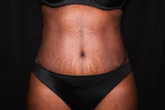 Tummy Tuck - Abdominoplasty 1058617