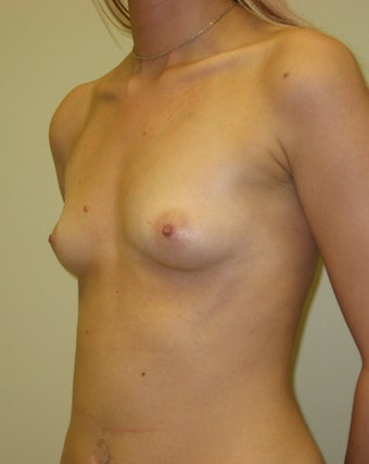 25-34 year old woman treated with Breast Augmentation before 3776227