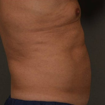 55-64 year old man treated with CoolSculpting after 1612047
