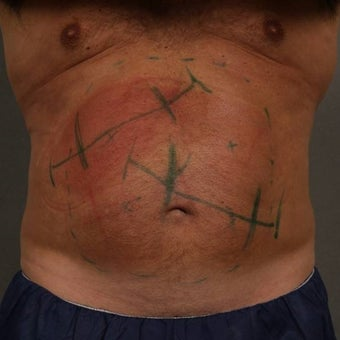 55-64 year old man treated with CoolSculpting 1612047