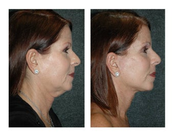 Lower Facelift and Necklift for Dramatic, Natural-Appearing Rejuvenation before 896419