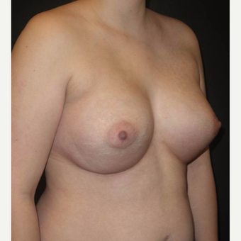 18-24 year old woman treated with Breast Implants after 3458281