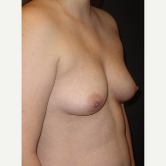 18-24 year old woman treated with Breast Implants before 3458281