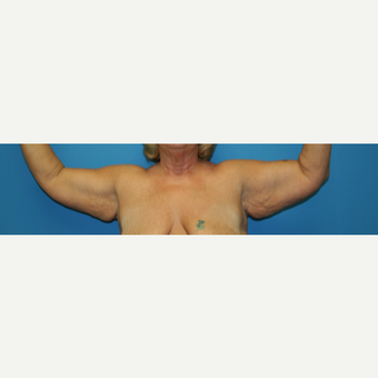 45-54 year old woman treated with Arm Lift before 3208555