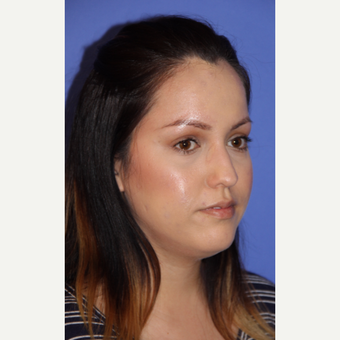 25-34 year old woman treated with Rhinoplasty before 3333463