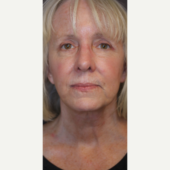 Upper blepharoplasty, brow pexy and neck lift after 3613819