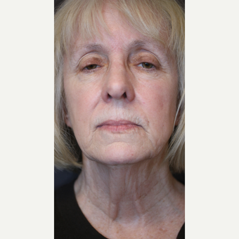 Upper blepharoplasty, brow pexy and neck lift before 3613819