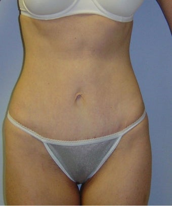 46 Year Old Female Treated with Mini Tummy Tuck after 1475505
